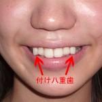 imperfectteeth1.jpg